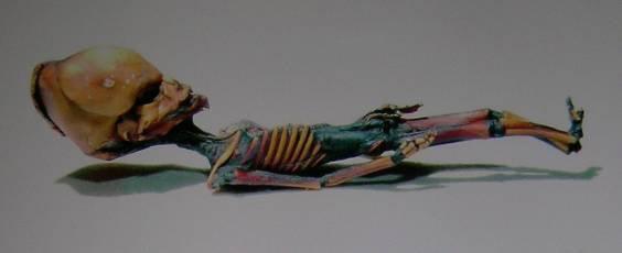 Noticias criminología. El forense Francisco Etxeberria dictaminó que el 'extraterrestre de Atacama' es un feto humano. Marisol Collazos Soto