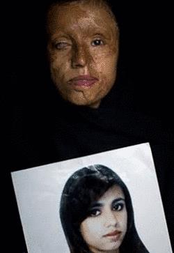 Noticias Criminología. Salvajada del marido a su esposa niña, Islám. Marisol Collazos Soto